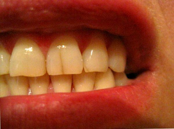 Трещины на зубе