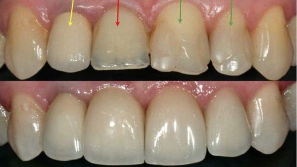 Сколы в зубах